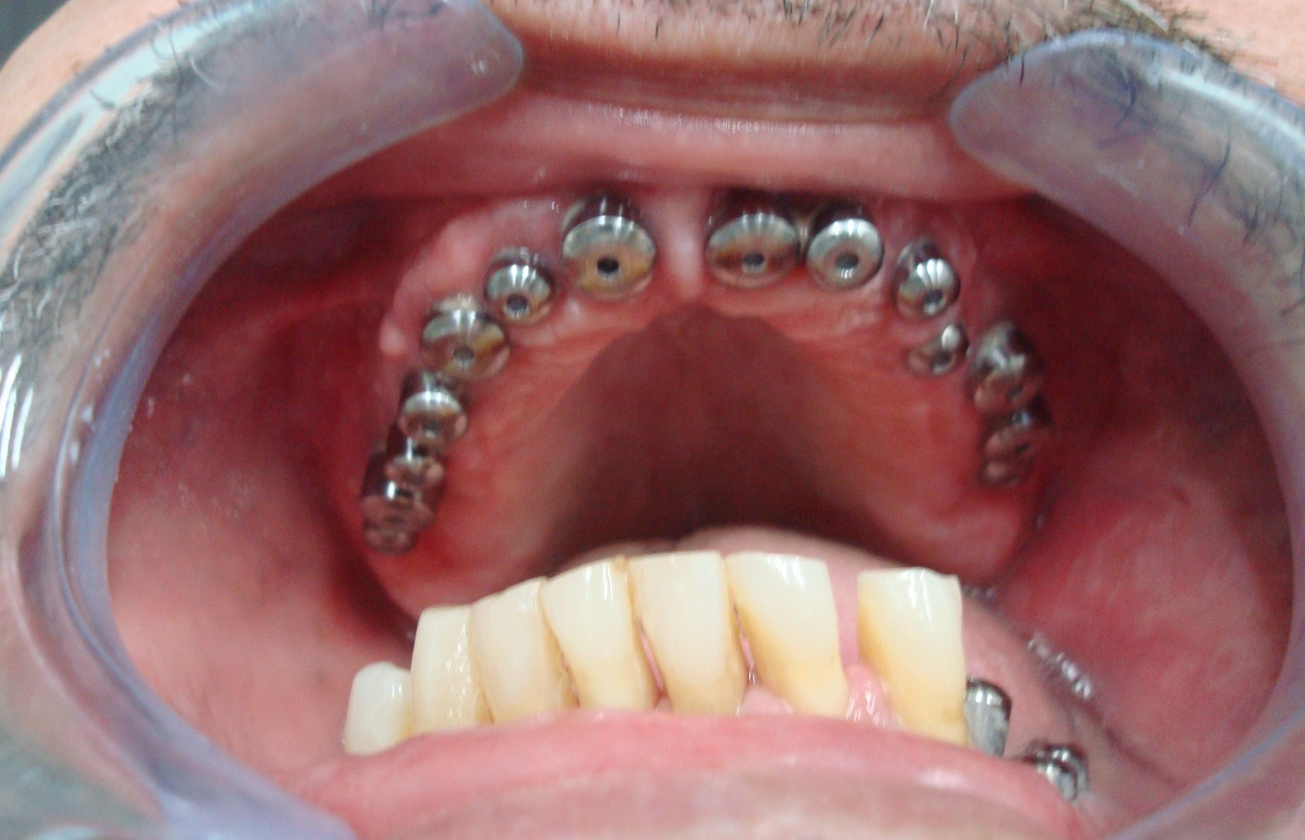 Reabilitação com Implantes Unitários.