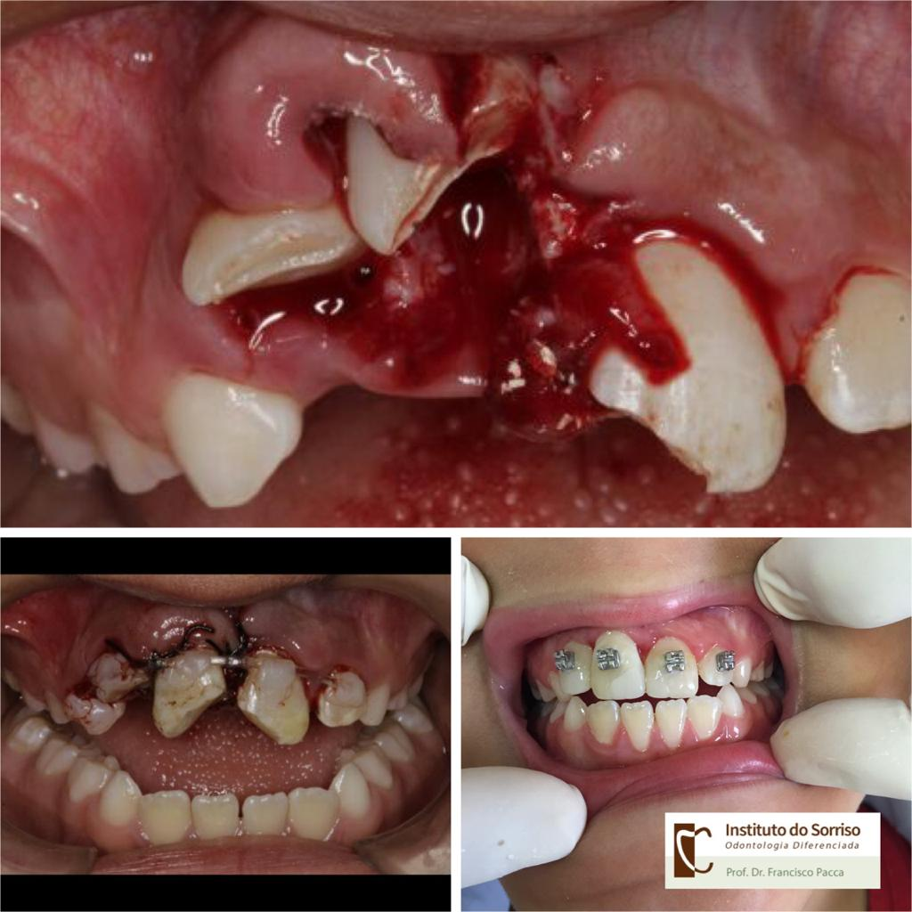 Trauma de Face + Trauma Dental